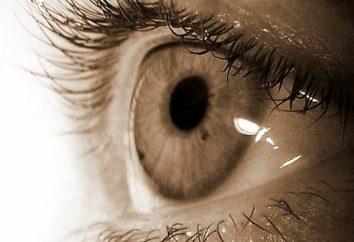 Perché mereschatsya puntini neri negli occhi
