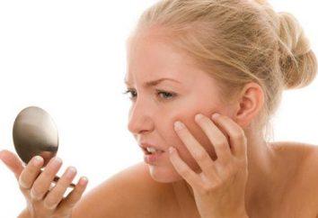 Dlaczego sen trądziku (na twarz, ciało)? Co sen nacisnąć pryszcze?
