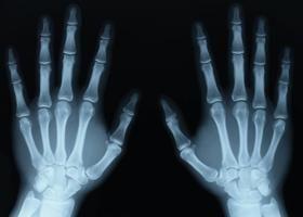 Czy wiesz, jak często można robić zdjęcia rentgenowskie, i czy jest to niebezpieczne dla ludzi