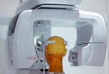 dientes tomografía computarizada: la realización de funciones de diagnóstico, ventajas del método
