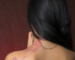 Objawy AIDS u kobiet: Diagnozowanie straszną chorobę