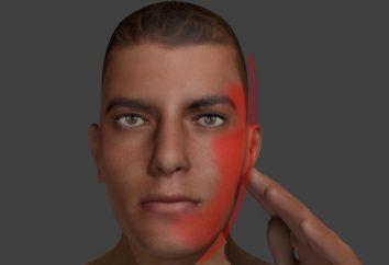 Zapalenie nerwu twarzy: objawy, leczenie. Jak rozpoznać nerwu wzrokowego twarzy