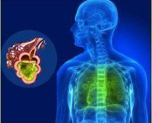 Co różni się od ARI ARI? Ostre choroby układu oddechowego. Ostrych zakażeń wirusowych dróg oddechowych