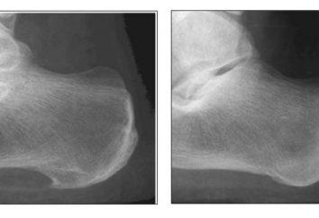Espolones del talón. ¿Qué es esta enfermedad y cómo luchar contra ella?