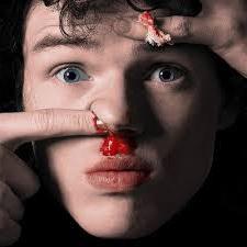 Come per causare un sangue dal naso. fattori aggravanti
