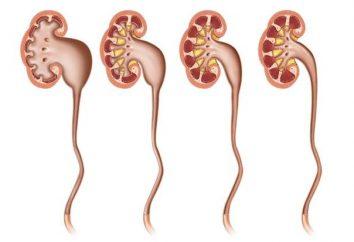 Idronefrosi del rene sinistro: eziologia e sintomi