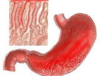 Gastrite: le symptôme est soudaine, et le traitement – d'une vie