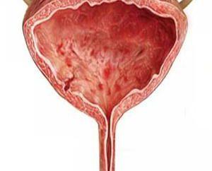 A che si lamentano dei pazienti con cistite interstiziale? Cause e trattamento della malattia