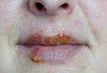 infezioni da herpes virus nei bambini e negli adulti: sintomi e trattamento