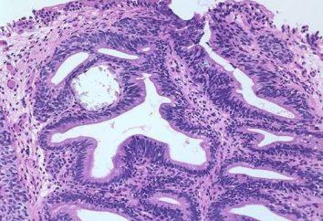 Zapalenie pęcherza: objawy i czynniki przyczyniające się do pojawienia się choroby