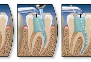 Un traitement endodontique des dents. Les étapes endodontique