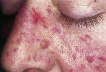 Causas y síntomas del síndrome hemorrágico