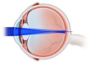 Astigmatismo miopico composto in entrambi gli occhi nei bambini: trattamento