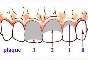 Indice vert Vermillion. indice d'hygiène bucco-dentaire. L'examen clinique chez le dentiste