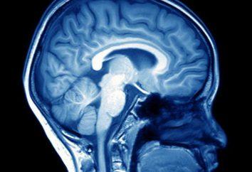 Liquorodynamic zaburzenia mózgowe: objawy, leczenie