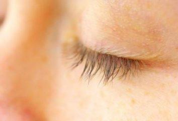 palpebra Itchy: cause e trattamento. Prurito e buccia coperchi