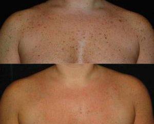 Brązowe plamy na ciele: co to jest możliwe przyczyny