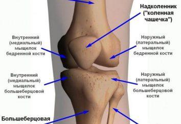 Das Kniegelenk: Bänder und mit ihnen verbundenen Verletzungen. Wie Bänder des Knies zu behandeln