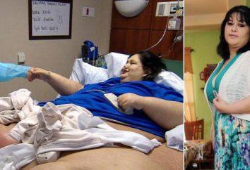 Las personas muy gordas: foto