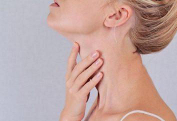 tiroiditis de Hashimoto enfermedad: síntomas y tratamiento