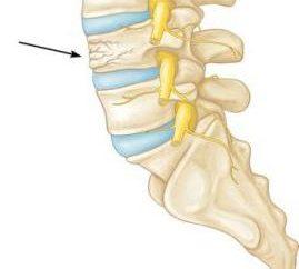 Złamania kompresyjnego kręgosłupa u dziecka: objawy, leczenie