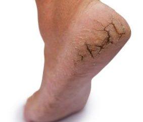 Comment et avec quoi traiter fissurée talons et entre les orteils? conseils utiles