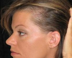 Las razones que provocaron la pérdida de cabello difusa, y cómo resolverlos