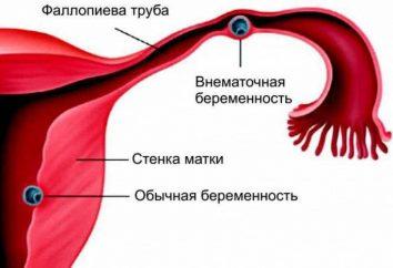 Laparoscopia per la gravidanza ectopica: caratteristiche di funzionamento, gli effetti della