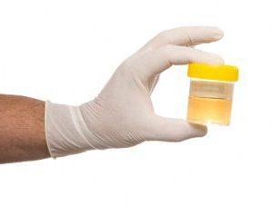 Moczu przez Nechiporenko: jak zbierać materiału biologicznego do badań?