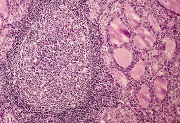 Choroba jest autoimmunologiczne zapalenie tarczycy