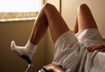 As causas dos sintomas e tratamento da uterina pólipos remédios populares