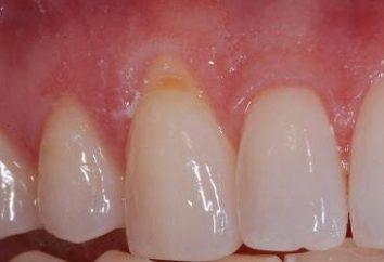 Se diventi nudo collo del dente, che cosa fare?