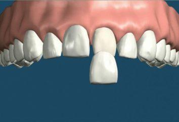Impiallacciatura sull'elemento vantaggi denti, caratteristiche di sua installazione e indicazioni per l'uso
