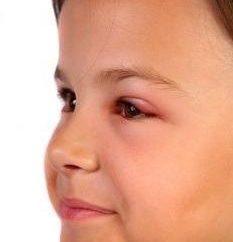 ¿Por qué hinchada del párpado sobre el ojo, y qué hacer en este caso?