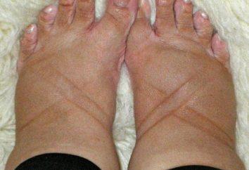 ¿Por qué calor pies hinchados como aliviar la tensión en las extremidades?