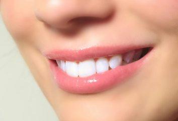 procédure de blanchiment des dents: critiques et recommandations