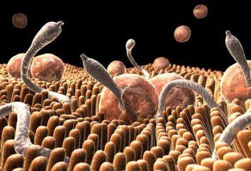 Worms im menschlichen Körper: die Zeichen und die Infektionsquellen