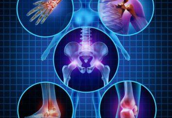 Reumatoidalne zapalenie stawów: Objawy, diagnostyka, leczenie lekami u dzieci i dorosłych