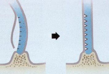 La cirugía para corregir el tabique nasal: Métodos y Comentarios