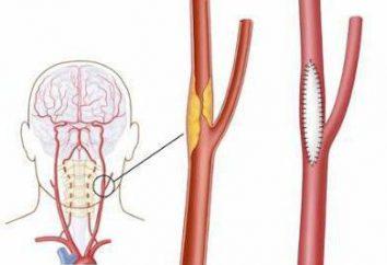 La endarterectomía carotídea: indicaciones, complicaciones postoperatorias, operados opiniones, pros y contras