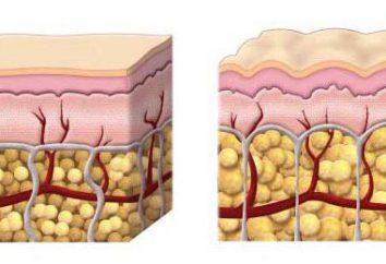 Exercícios para a celulite no papa e pernas. O efeito só dá sistemática!