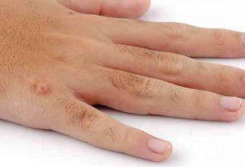 À partir de laquelle il y a des verrues sur les mains? Quelles sont les causes des verrues sur les doigts des enfants?