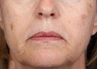 Jak wyświetlić plamy na twarzy: porady i wskazówki