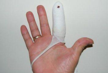 Szczegóły dotyczące sposobu rozbić palcem na ramieniu lub nodze