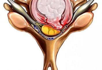 Extrusão – uma doença dos discos intervertebrais. Variedades de extrusão. terapias