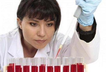 L'électrophorèse du sérum et de l'urine. Electrophorèse des protéines sériques: la transcription de la règle