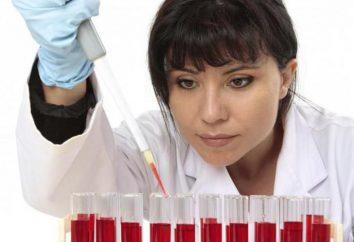 Przyczyny zwiększonej ESR we krwi kobiet, diagnozowania, leczenia