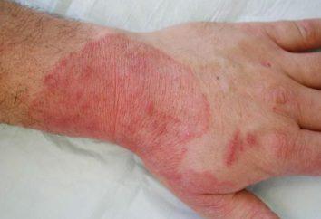 micoses de pele: o tratamento com medicamentos e remédios populares, sintomas
