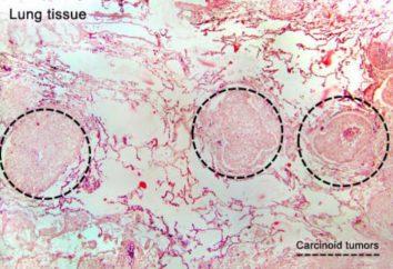 El síndrome carcinoide: síntomas, diagnóstico y tratamiento