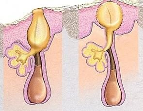 Comment éliminer l'acné sur votre dos?